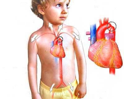 aortad